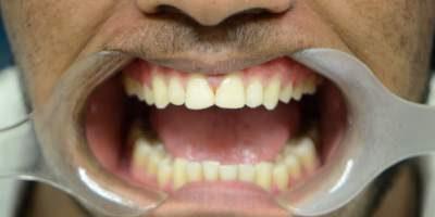 patient-gums