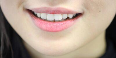 Crooked-teeth