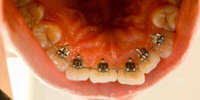braces-patient