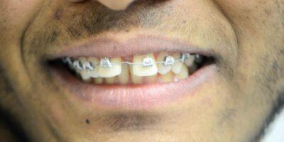 patient-braces