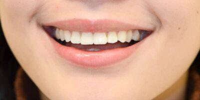 Patient-smile