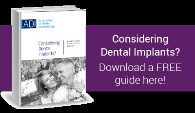 Dental-implant-guide