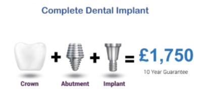 dental-impants-cost