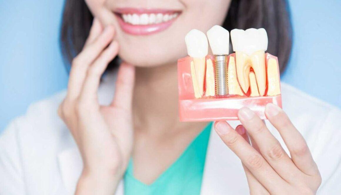 dental-impants-image